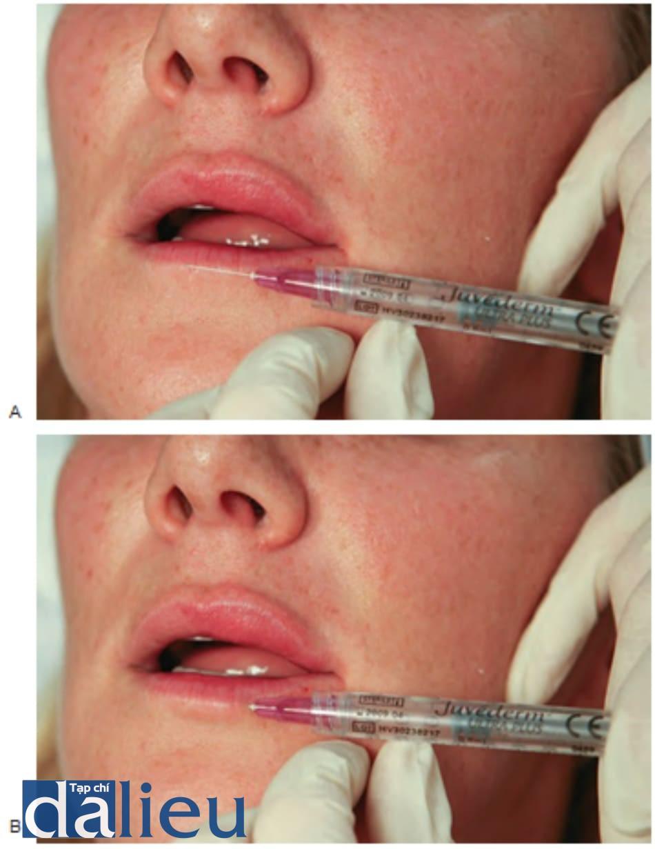 FIGURE 6 ● Lần tiêm đầu tiên cho điều trị làm đầy da viền môi dưới: xác định điểm chèn kim (A) và kỹ thuật tiêm (B).