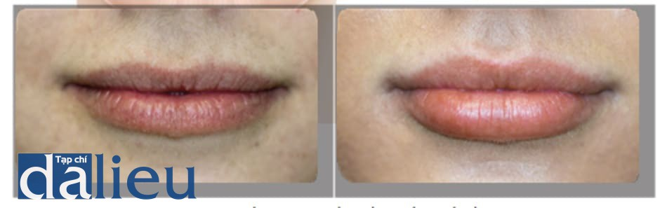 HÌNH 1 ● Độ dày của môi trước (A) và 4 tuần sau khi (B) điều trị bằng chất làm đầy bằng axit hialuronic.