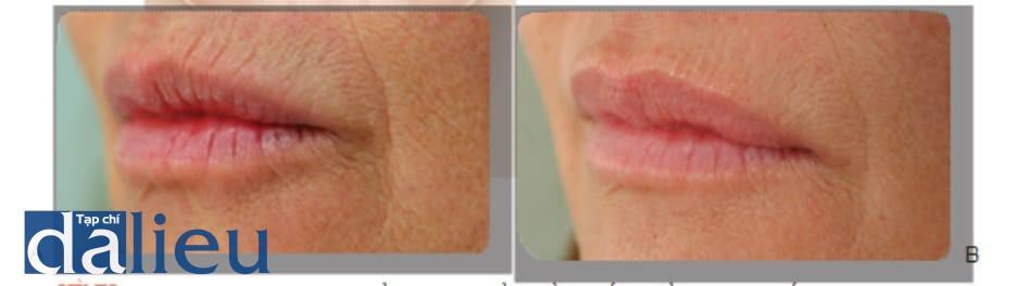 HÌNH 1 ● Các rãnh môi trước (A) và 4 tuần sau (b) khi điều trị bằng chất làm đầy, sử dụng muối calcium hydroxylapatite trên môi và axit hialuronic trên viền môi.