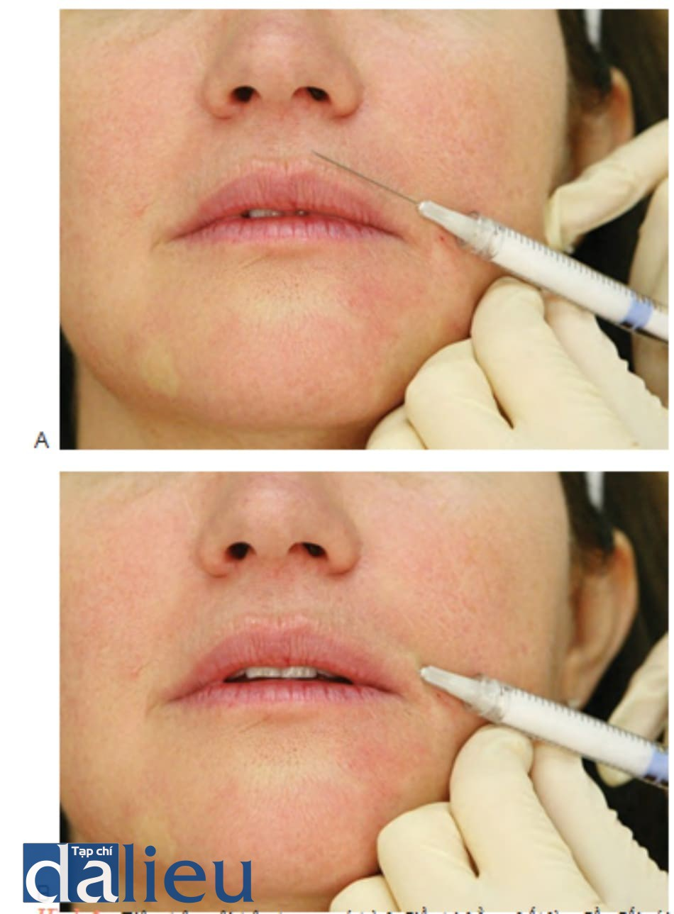 Hình 4 ● Tiêm trên môi trên trong quá trình điều trị bằng chất làm đầy đối với các rãnh môi: xác định điểm đưa mũi kim vào (A) và kĩ thuật tiêm (B)