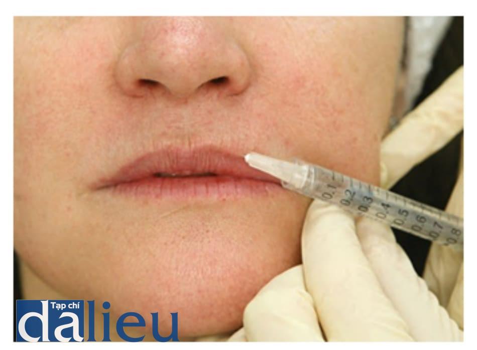 Hình 5 ● Tiêm viền môi trong điều trị bằng chất làm đầy đối với các rãnh môi.