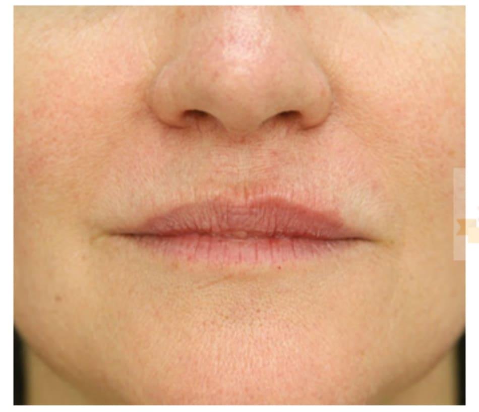 Hình 6 ● Viền môi trên bên trái ngay sau khi điều trị bằng chất làm đầy bằng axit hyaluronic.
