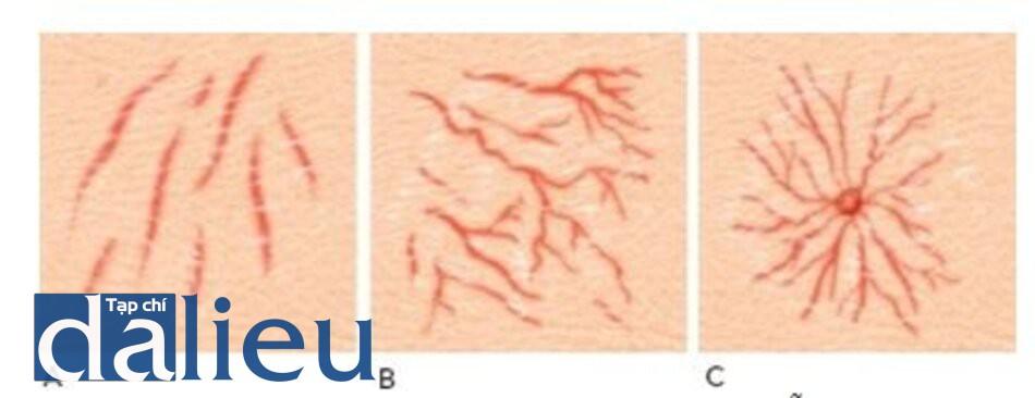 HÌNH 2 Giãn mao mạch theo đường thẳng (A) và dạng thân gỗ (B), và dạng u mạch mạng nhện (C).