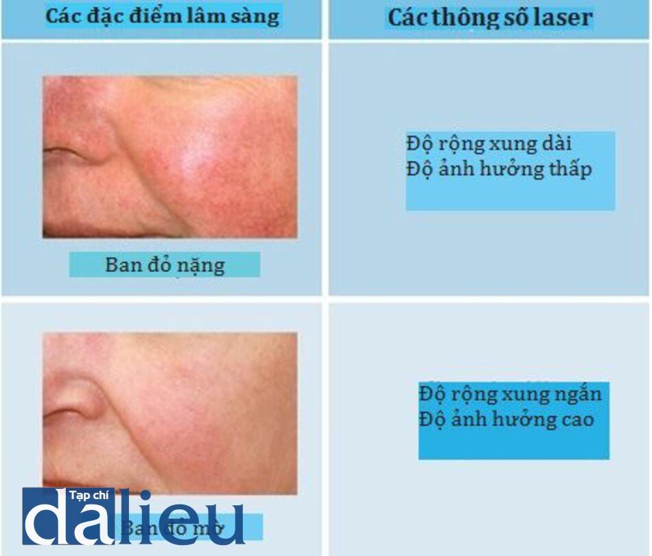 HÌNH 6 Các đặc điểm tổn thương mạch máu và các thông số laser. (với sự cho phép của BS R. Small)