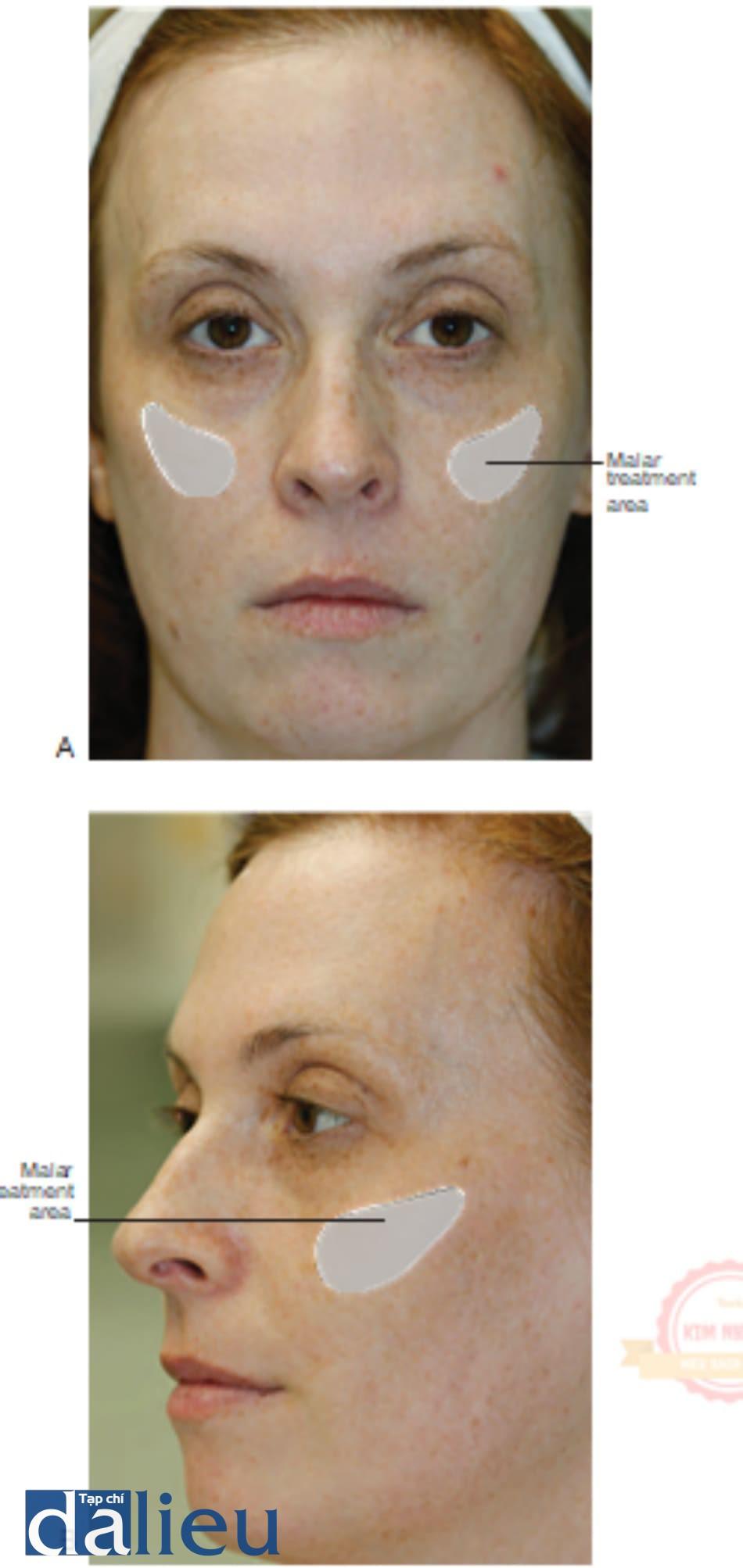 Hình 2 ● Điều trị bơm má nhìn từ trước (A) và bên (B).