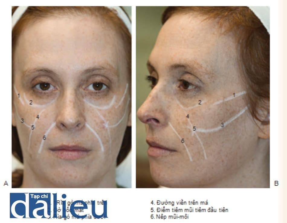 Hình 3 ●.Các điểm chú ý trên khuôn mặt để điều trị bơm má bằng chất làm đầy nhìn từ phía trước (A) và bên (B)