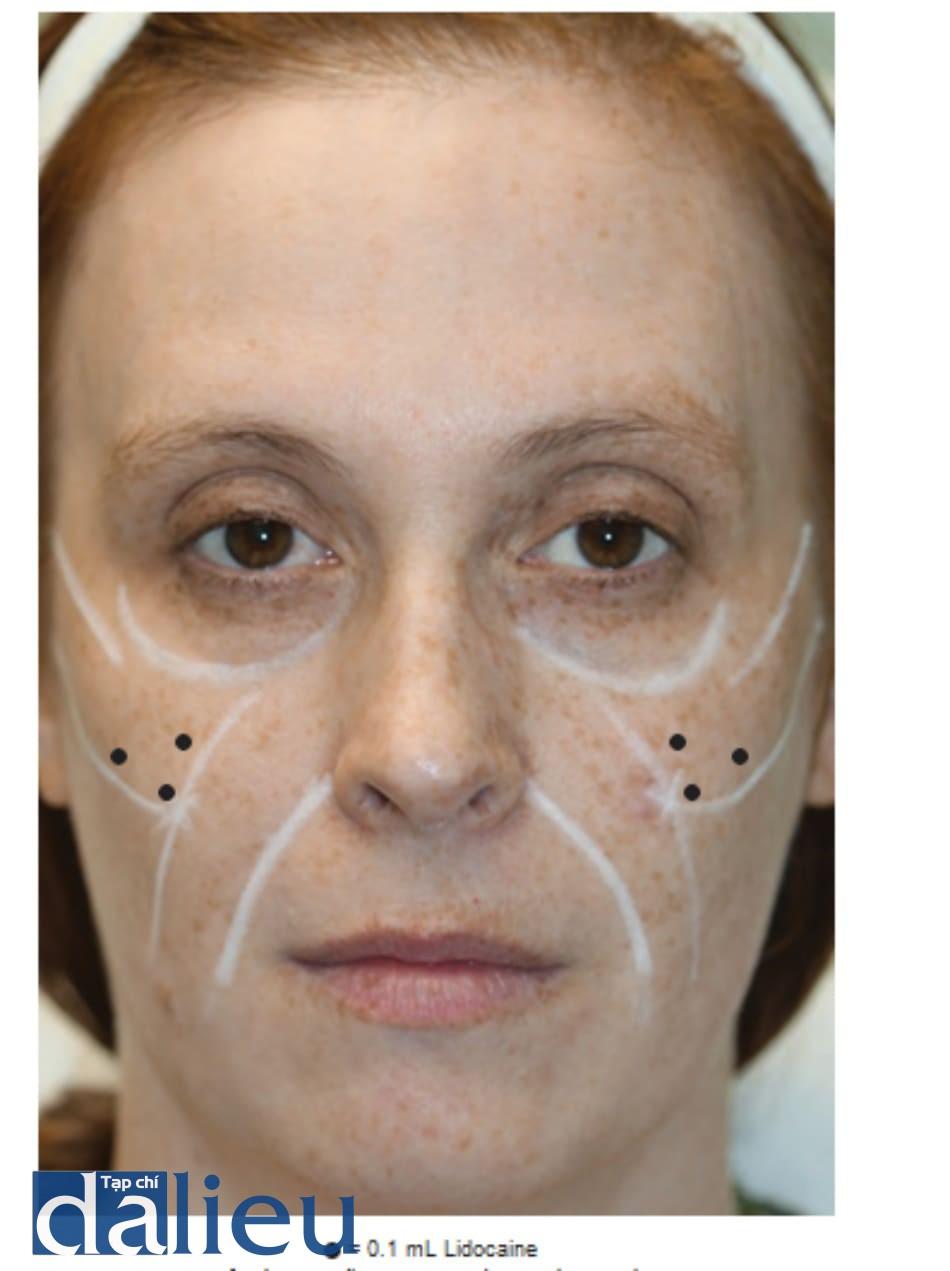 Hình 4 ● Gây tê để điều trị phẫu thuật má bằng chất làm đầy.