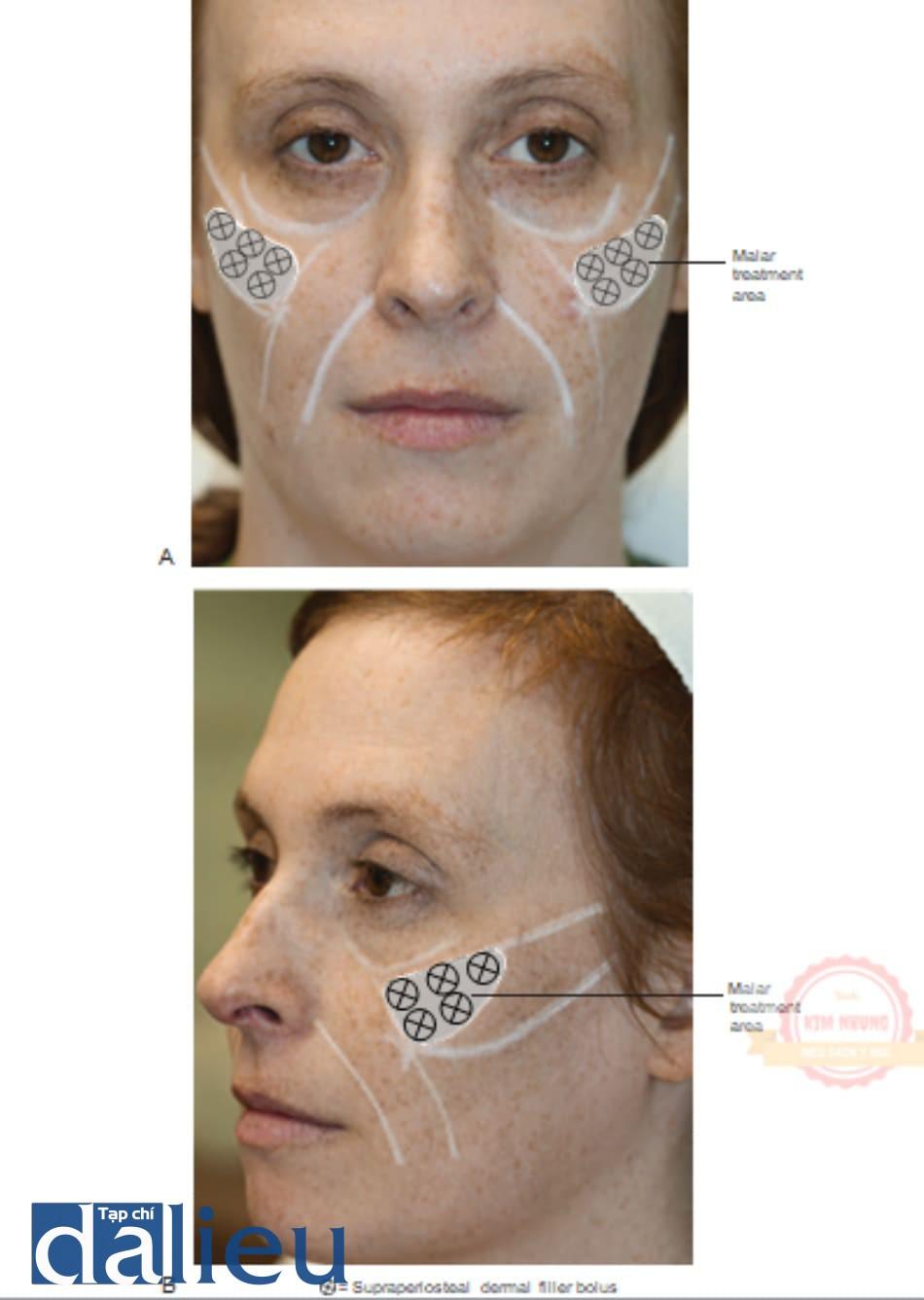 Hình 5 ●. Tổng quan các mũi tiêm chất làm đầy cho việc bơm môi được quan sát trực diện (A) và bên (B).