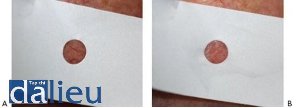 HÌNH 8 Giãn mao mạch trước khi (A) và ngau sau khi điều trị (B) cho thấy đáp ứng lâm sàng của việc xóa mạch máu sử dụng IPL với sự che dấu tổn thương với vùng da xung quanh.