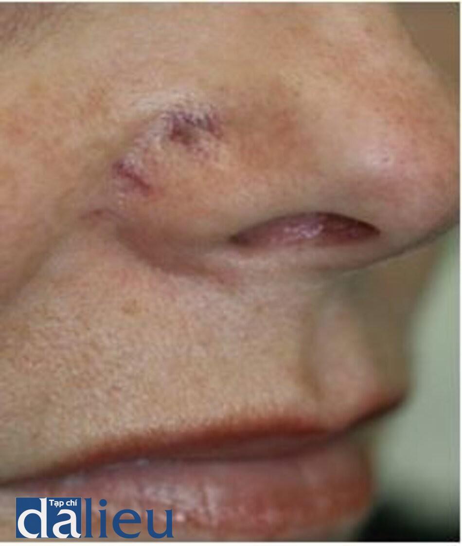 HÌNH 9 Ban xuất huyết ở ala mũi ngay sau khi điều trị giãn mao mạch sử dụng IPL. (với sự cho phép của BS R. Small)