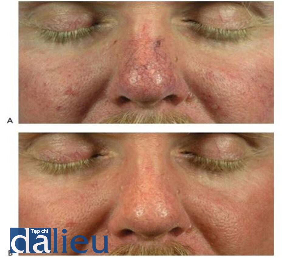 HÌNH 10 Giãn mao mạch ở vùng mũi trước khi (A) và sau khi (B) một chuỗi điều trị với IPL