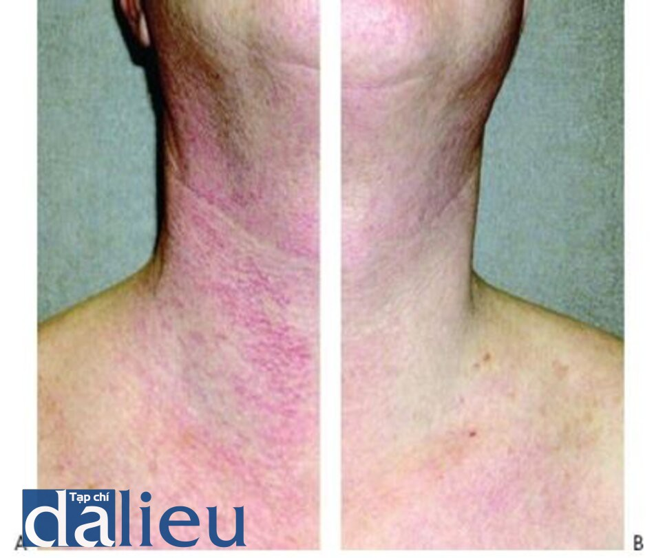 HÌNH 13 Điểm da của Civatte trên cổ trước khi (A) và sau khi (B) sau 2 lần điều trị với IPL.