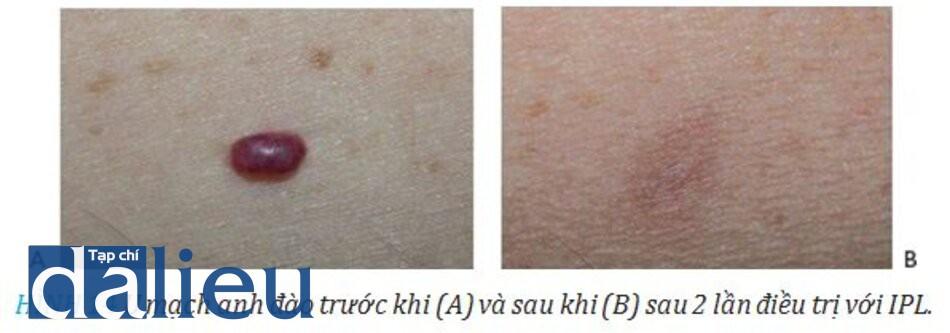 HÌNH 14 U mạch anh đào trước khi (A) và sau khi (B) sau 2 lần điều trị với IPL.