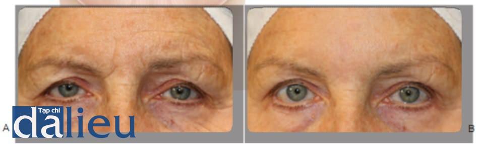 Hình 1 ● Các nếp nhăn trước (A) và 2 tuần sau (b) khi điều trị bằng chất làm đầy axit hialuronic.