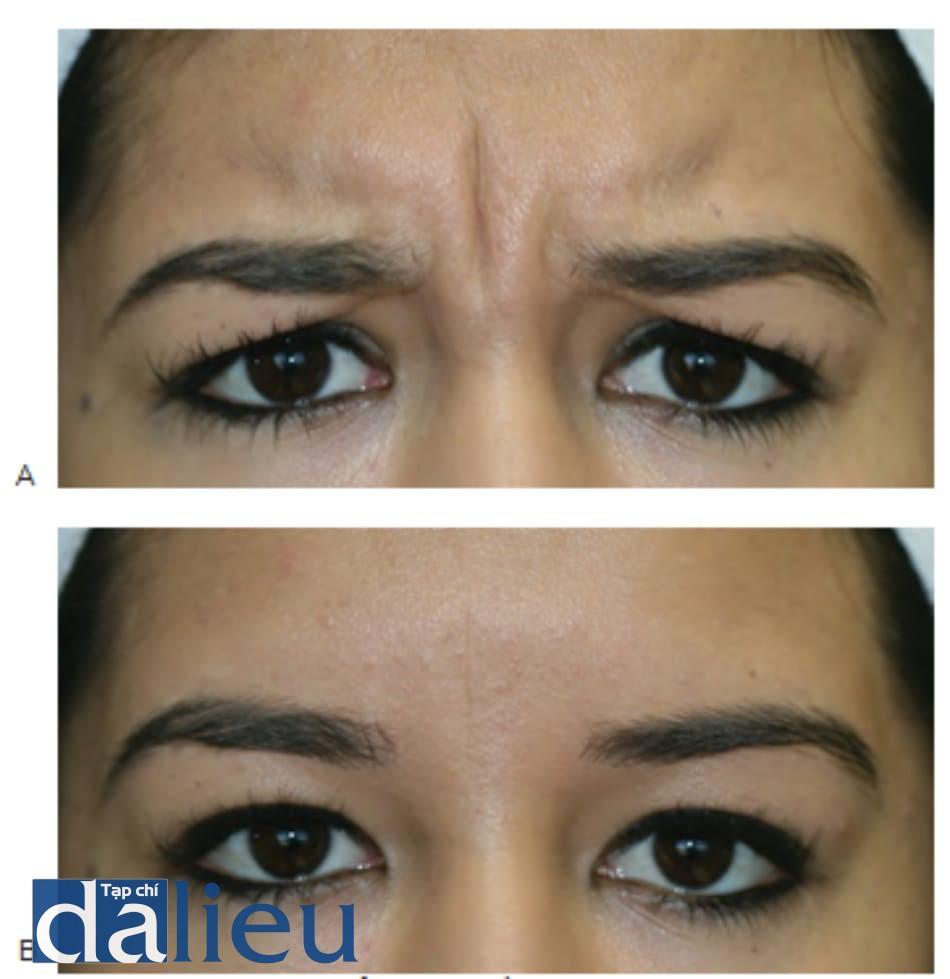 Hình 2 ● Bệnh nhân trẻ thể hiện các nếp nhăn động do cau mày (A) và thiếu các nếp nhắn tĩnh phần còn lại (B) chưa đủ tiêu chuẩn để được điều trị bằng chất làm đầy đối với nếp nhăn trên trán.
