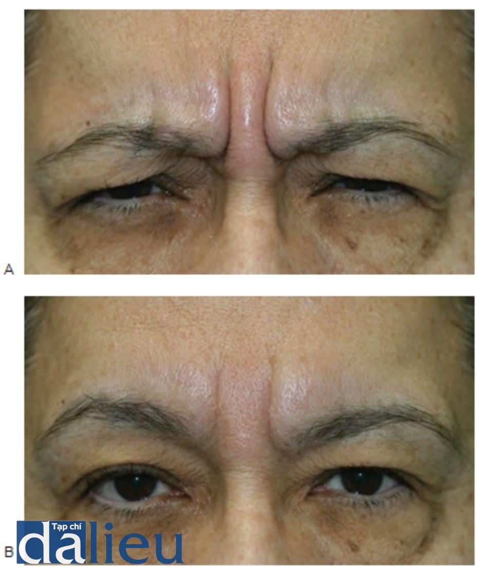 Hình 3 ● Mẹ của bệnh nhân ở Hình 2 biểu hiện các nếp nhăn trên trán động được nhìn thấy khi cau mày (A), và các nếp nhăn tĩnh dễ thấy phần còn lại (B) và là một bệnh nhân đủ điều kiện để điều trị bằng chất làm đầy đối với các nếp nhăn trên trán.