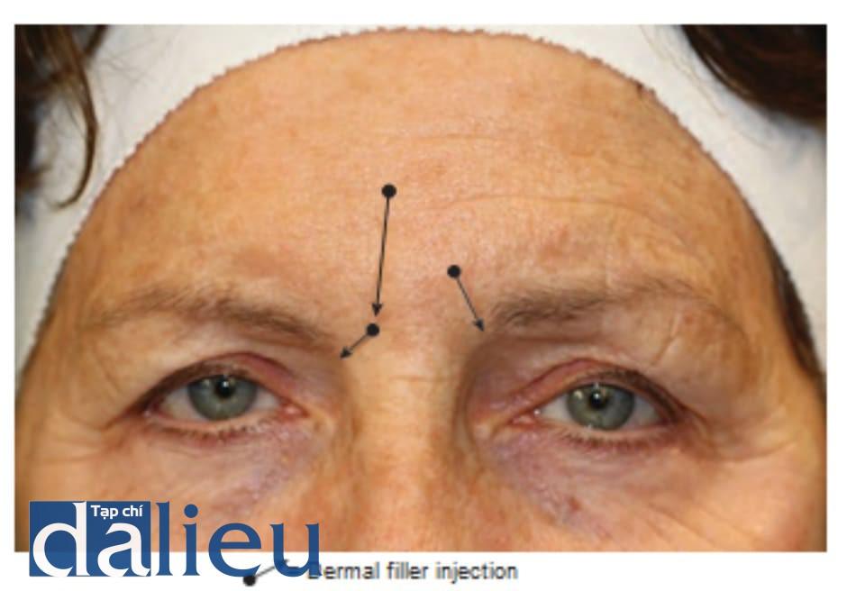 Hình 5 ● Tổng quan các mũi tiêm chất làm đầy điều trị nếp nhăn.