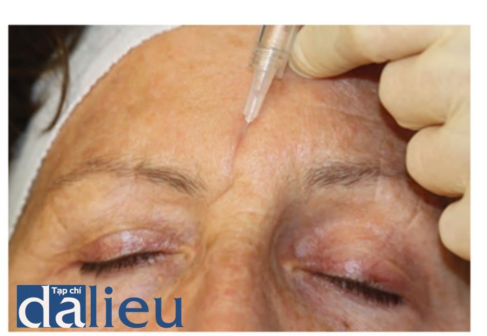 Hình 6 ● Kĩ thuật tiêm khi điều trị sử dụng chất làm đầy đối với nếp nhắn trên trán.