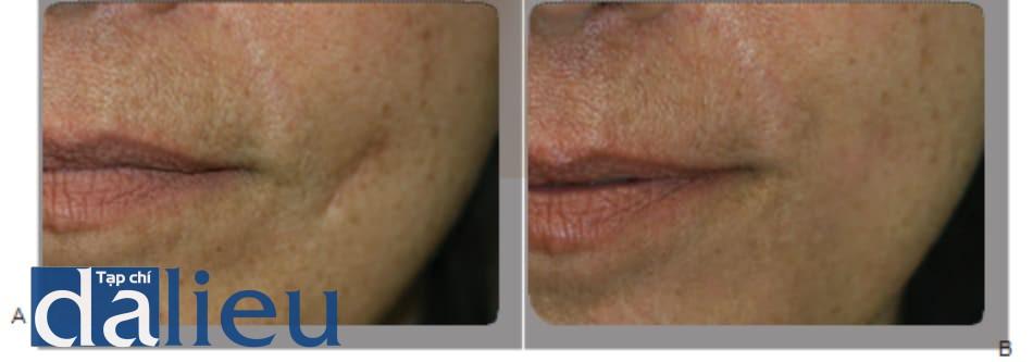 Hình 1 ●Sẹo trước (A) và 4 tuần sau (b) khi điều trị bằng chất làm đầy, sử dụng axit hialuronic.