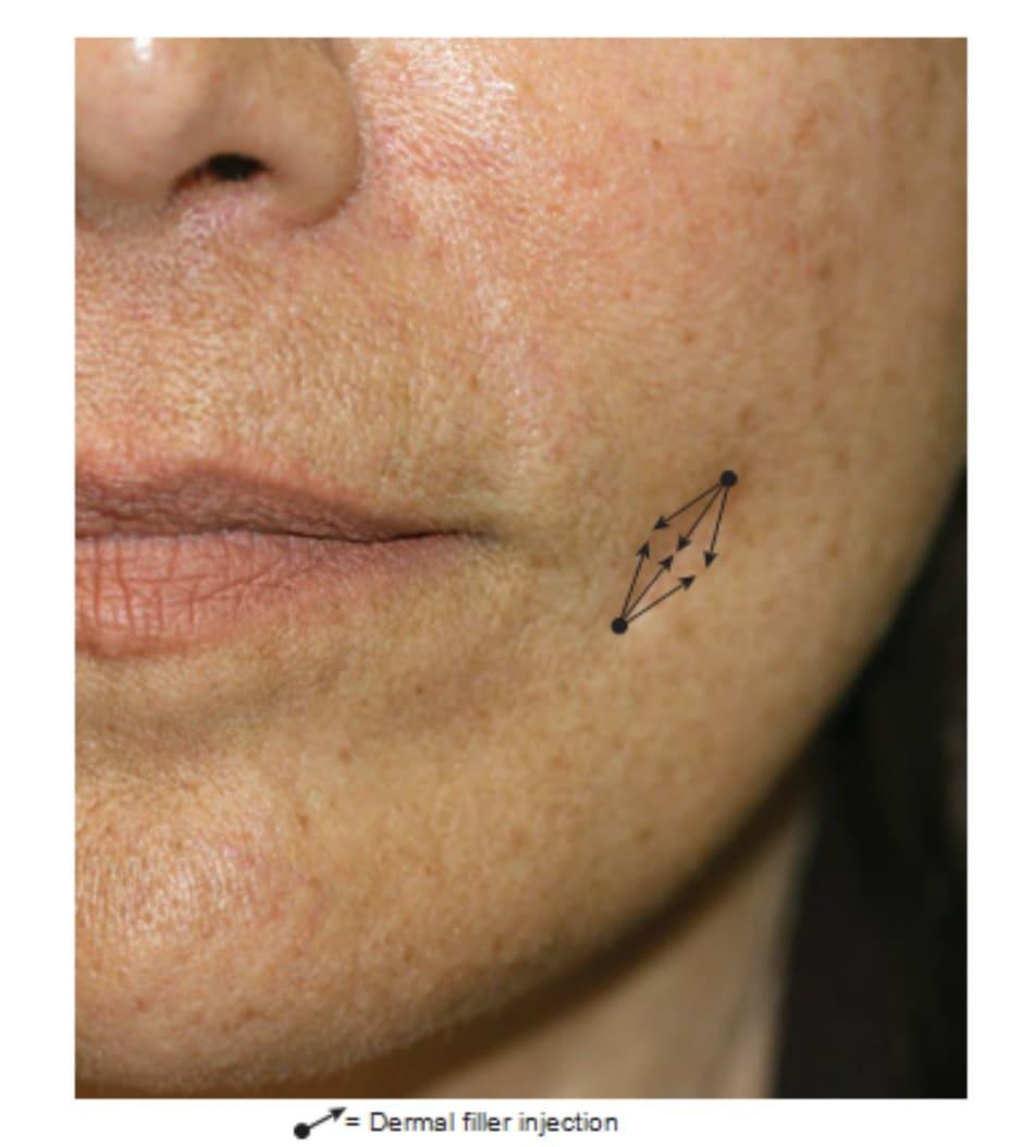 Hình 3 ● Tổng quan các mũi tiêm chất làm đầy để điều trị sẹo lõm.