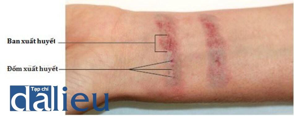HÌNH 10 Đáp ứng lâm sàng của đốm xuất huyết và ban xuất huyết một vài phút sau khi làm laser điều trị xóa xăm. (với sự cho phép của BS R. Small)