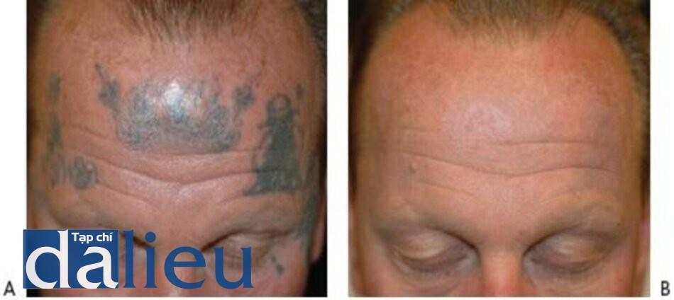 HÌNH 13 Hình xăm trên mặt màu đen trước khi (A) sau khi (B) 10 lần điều trị với Q-switched 1064 nm laser.