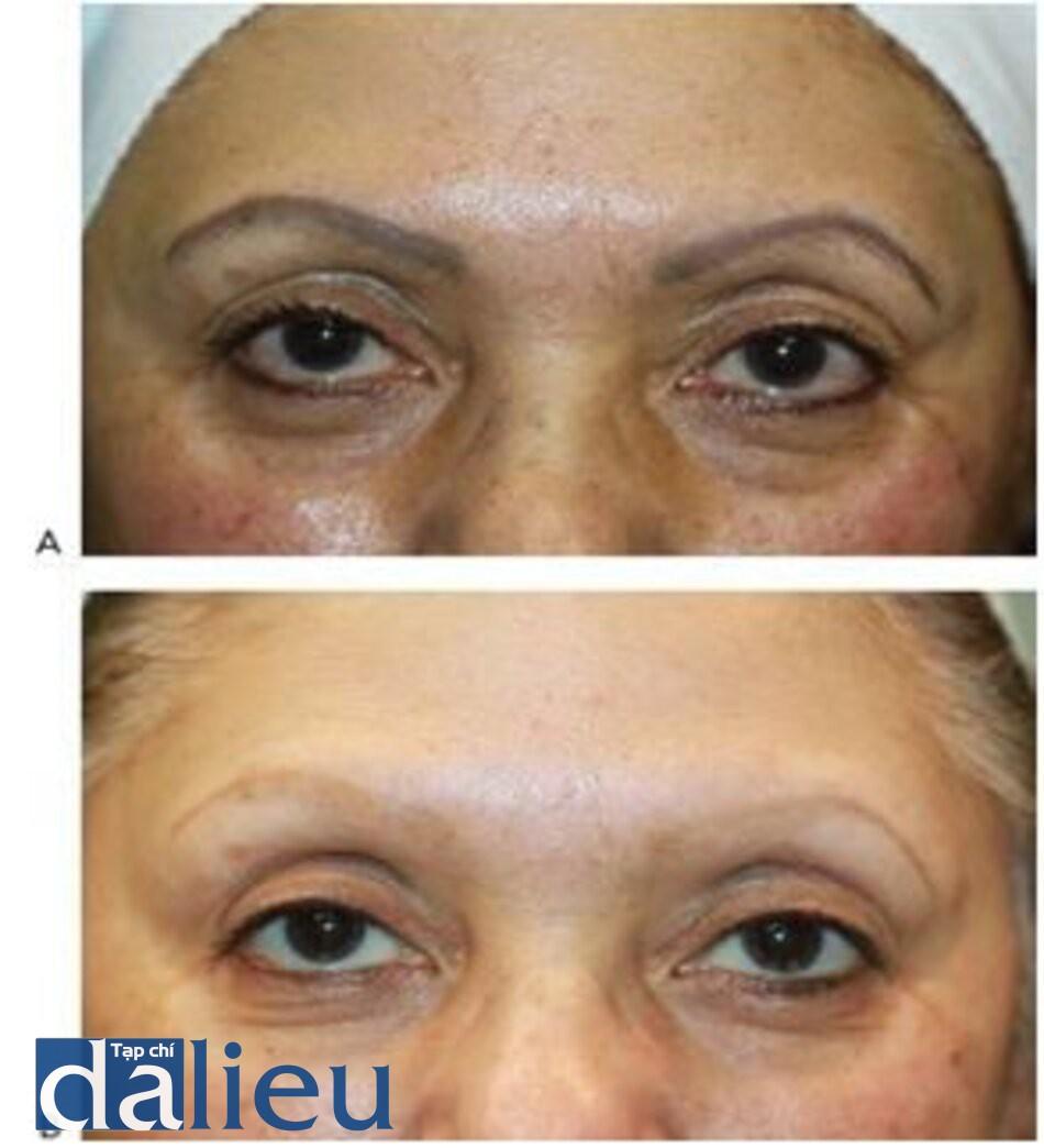 HÌNH 15 Hình xăm chân mày thẩm mỹ trước khi (A) và sau khi (B) 12 lần điều trị với Q-switched 1064 nm laser.