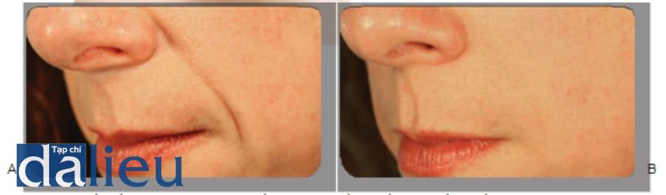 Hình 1 ● Nếp gấp mũi má trước (A) và 4 tuần sau khi (B) điều trị chồng lớp chất làm đầy calcium hydroxylapatite và hyaluronic acid.