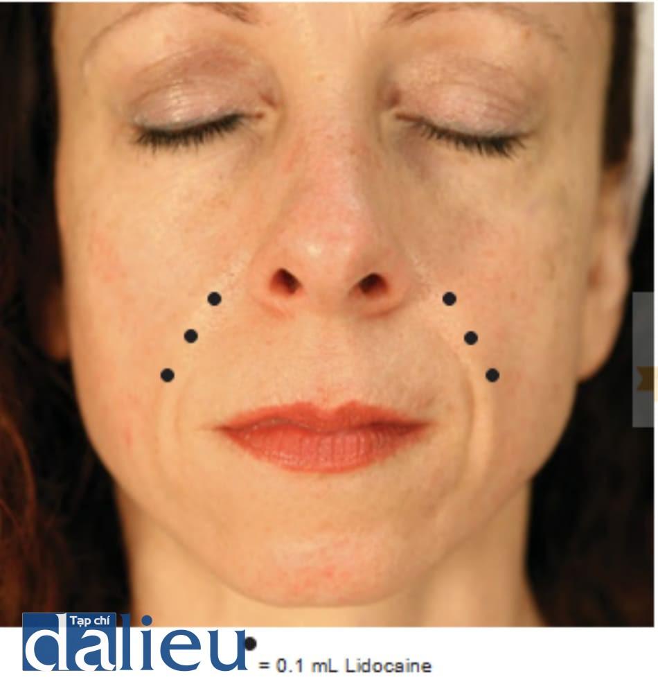Hình 2 ● Gây tê trong điều trị chất làm đầy nếp gấp mũi má