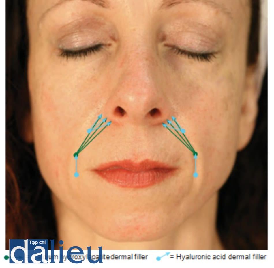 Hình 3 ● Tổng quan kĩ thuật điều trị chồng lớp chất làm đầy nếp gấp mũi má.
