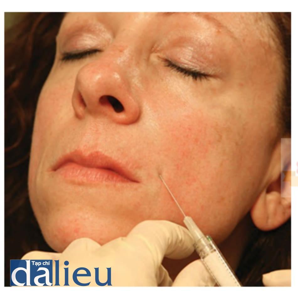 Hình 4 ● Chèn kim tiêm Calcium hydroxylapatite trong điều trị nếp gấp mũi má.