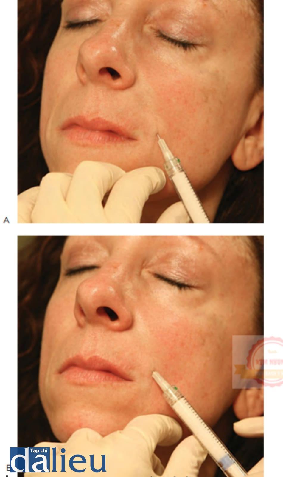 Hình 5 ● Calcium hydroxylapatite trong điều trị nếp gấp mũi má: lan dầnning từ (A) đến (B).