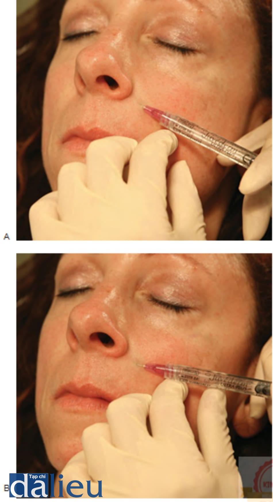 Hình 6 ● Hyaluronic acid chồng lớp trong điều trị các nếp gấp mũi má bên trên: lan dầnning từ (A) đến (B).