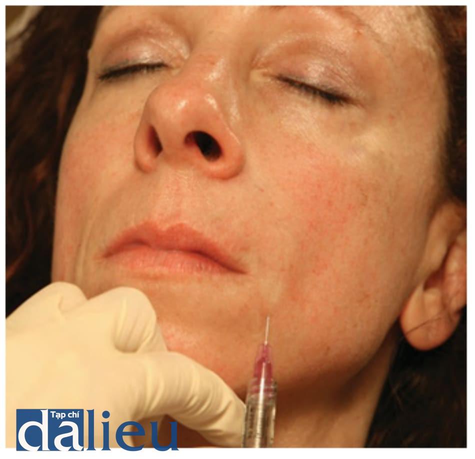 Hình 7 ● Điều trị Hyaluronic acid ở dưới nếp gấp mũi má.