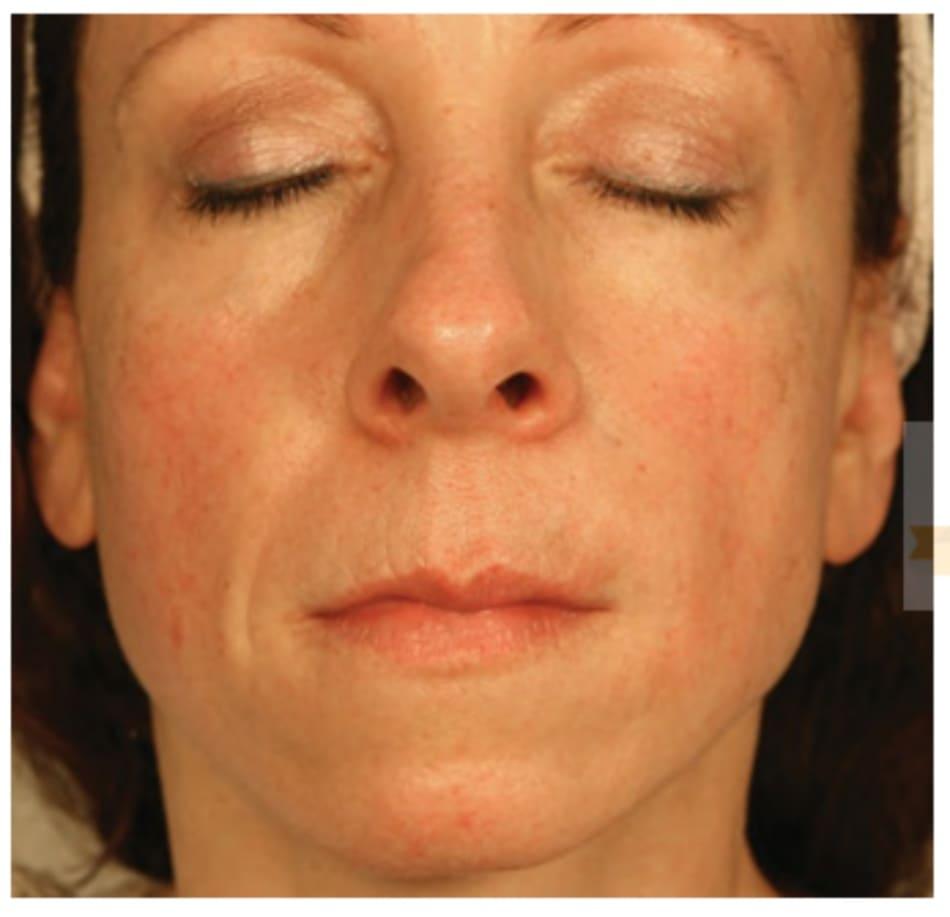 Hình 8 ● Nửa bên trái mặt được điều trị bằng việc chồng lớp chất làm đầy calcium hydroxylapatite và hyaluronic acid.