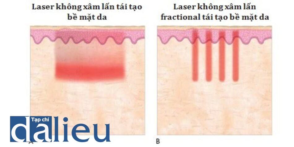 HÌNH 2 Các phần của laser không xâm lấn của tổn thương ở da: nonfractional (A) và fractional (B).