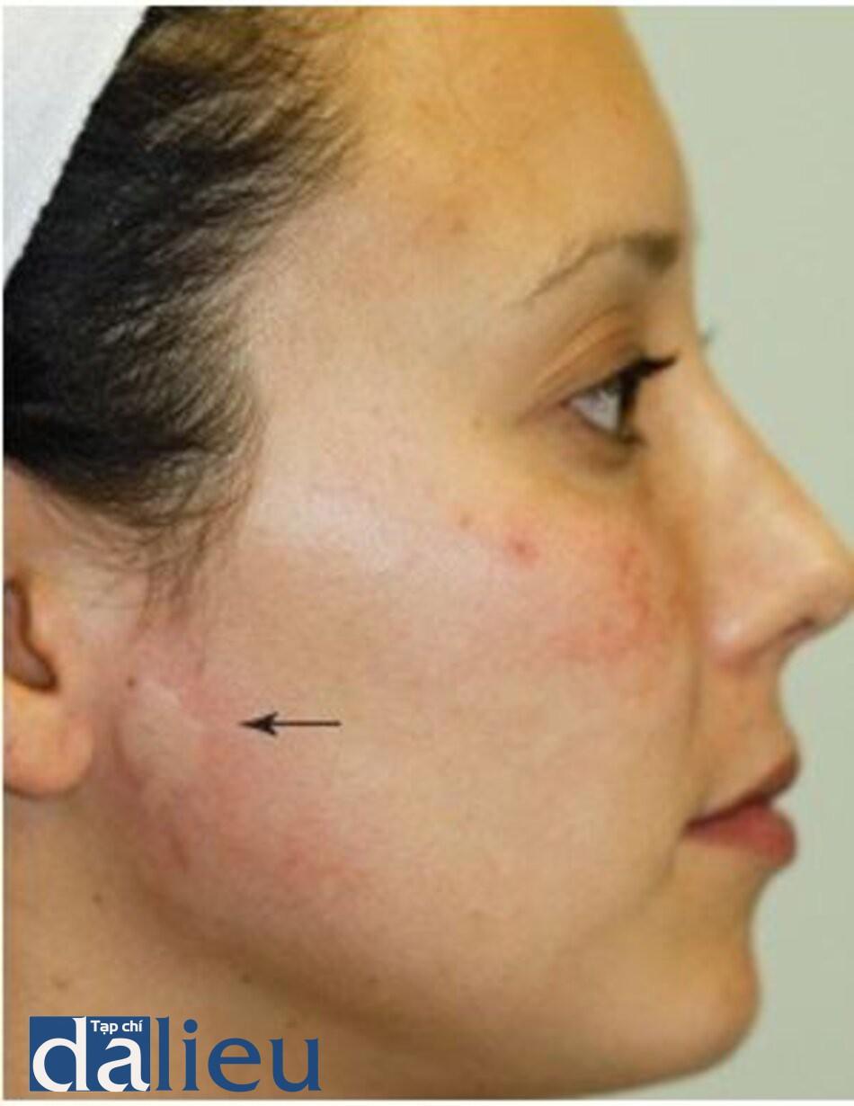 HÌNH 14 Mề đay trước tai sau khi điều trị tái tạo bề mặt da không xâm lấn. (với sự cho phép của BS R. Small)