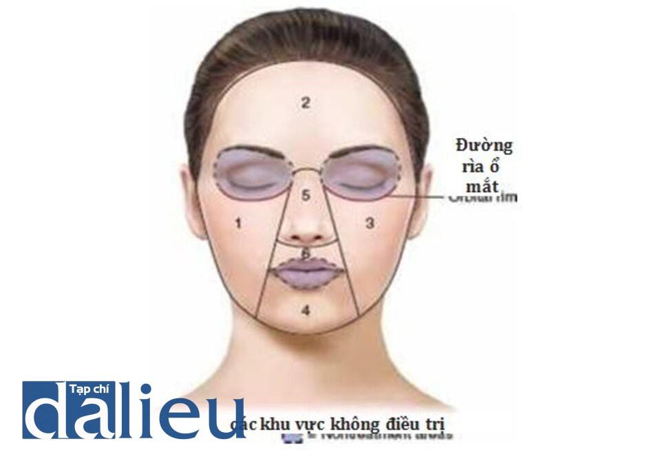 HÌNH 14 Các vùng điều trị laser trên mặt.