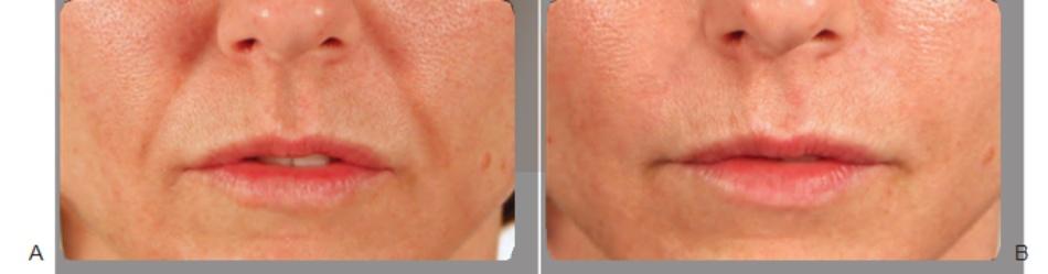FIGURE 1 ● Nếp gấp mũi - má trước (A) và 2 tuần sau (B) điều trị làm đầy da, sử dụng axit hyaluronic.