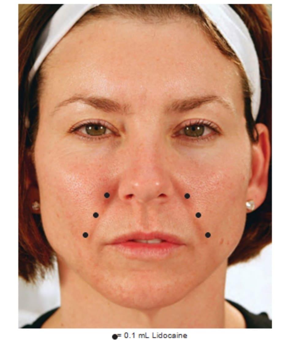 FIGURE 2 ● Gây tê cho điều trị làm đầy da nếp gấp mũi - má.