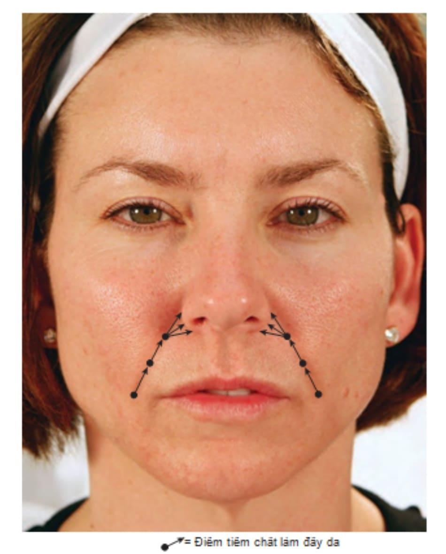 FIGURE 3 ● Tổng quan về tiêm chất làm đầy da gấp nếp mũi - má.