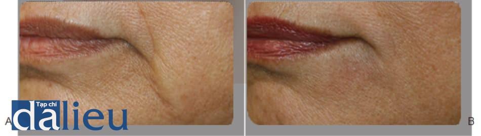 FIGURE 1 ● Các rãnh môi - hàm dưới trước (A) và 4 tuần sau (B) điều trị làm đầy da, sử dụng axit hyaluronic.