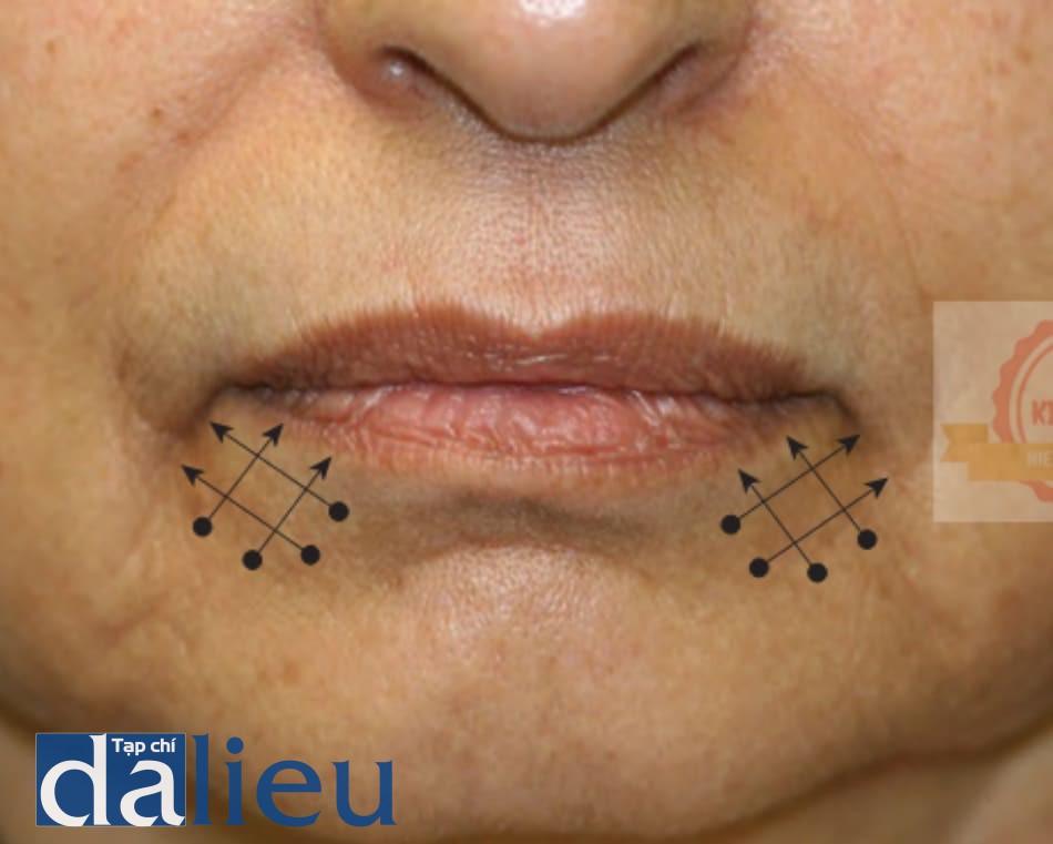 FIGURE 4 ● Kỹ thuật tiêm chéo cho điều trị làm đầy da của rãnh môi - hàm dưới.