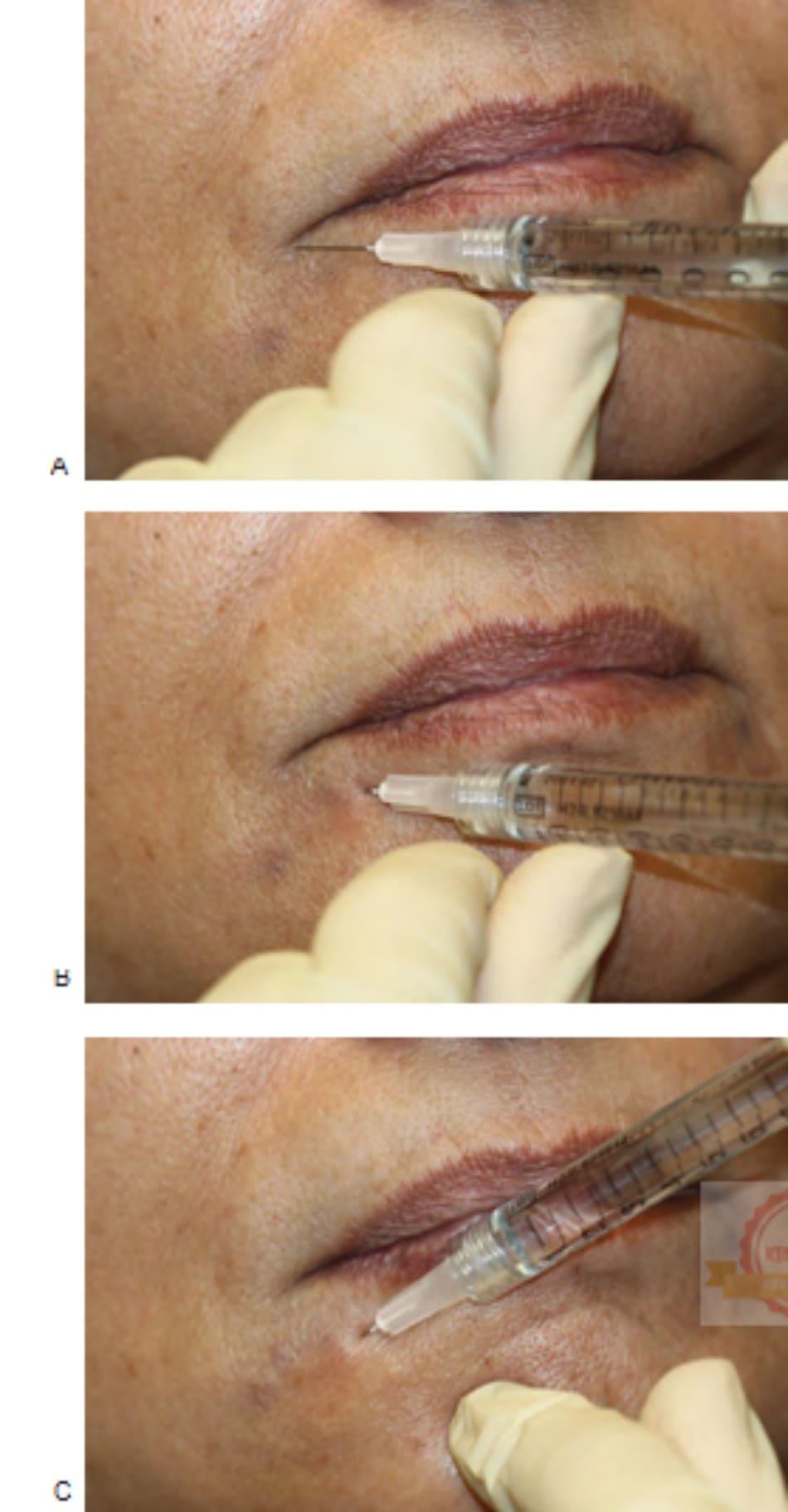 FIGURE 6 ● Phương pháp tiêm hình Quạt bên để điều trị chất độn da ở nếp nhăn cằm: xác định điểm tiêm (A) và kỹ thuật tiêm (B, C).