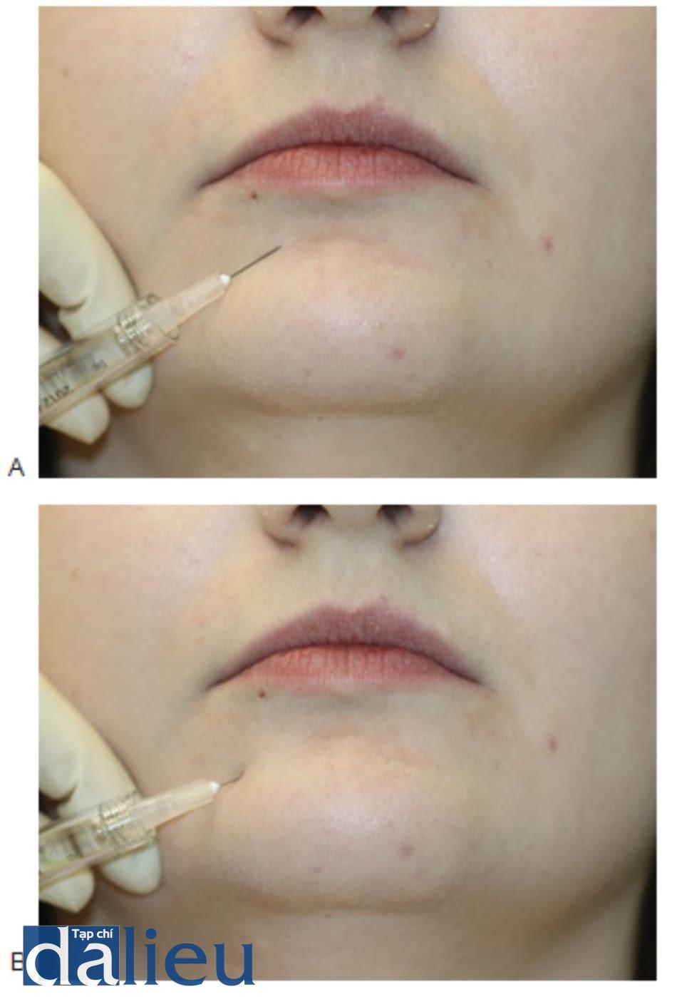 FIGURE 4 ● Lần tiêm đầu tiên để điều trị chất độn da: xác định điểm tiêm (A) và kỹ thuật luồng (B).