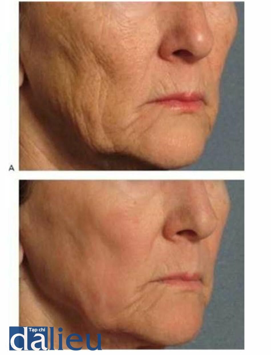 HÌNH 18 Nếp nhăn và kết cấu da thôi trước (A)và sau (B)kết hợp điều trị sử dụng laser xâm lấn nhiều lần.