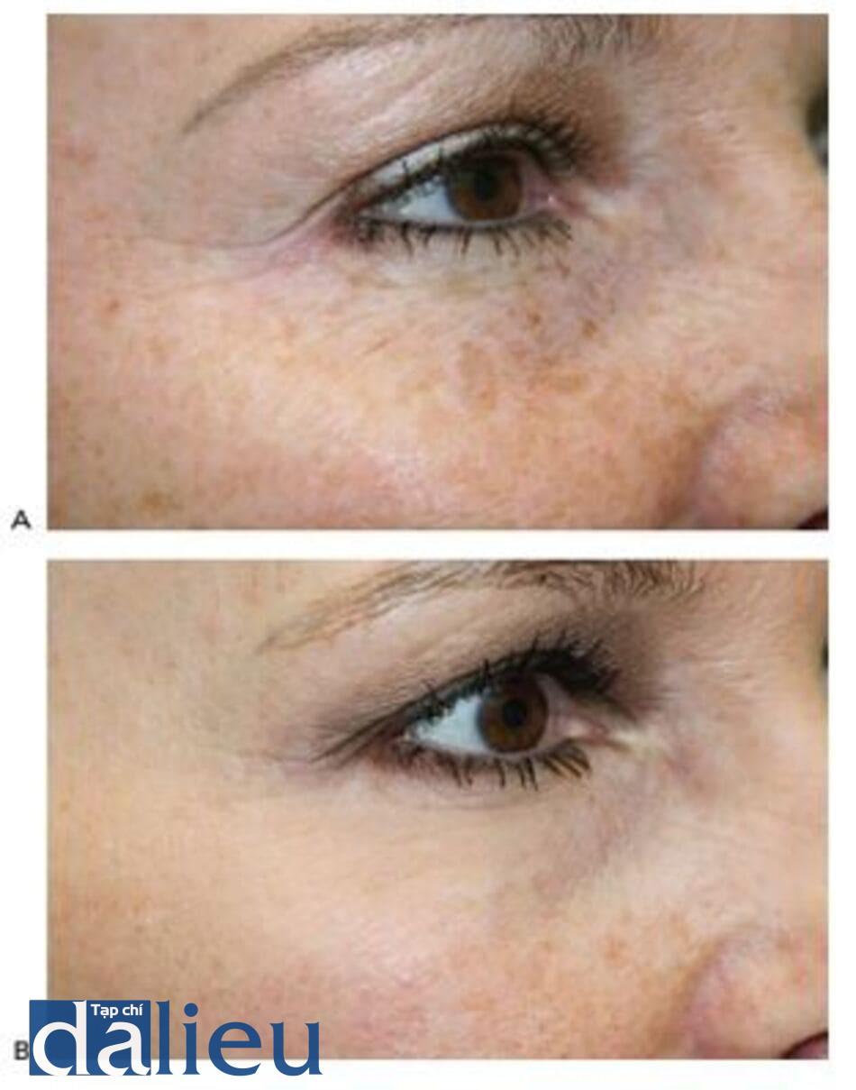 HÌNH 19 Nếp nhăn quanh ổ mắt và tàn nhang trước (A) và sau (B)kết hợp điều trị với laser xâm lấn và độc tố botuli- num.