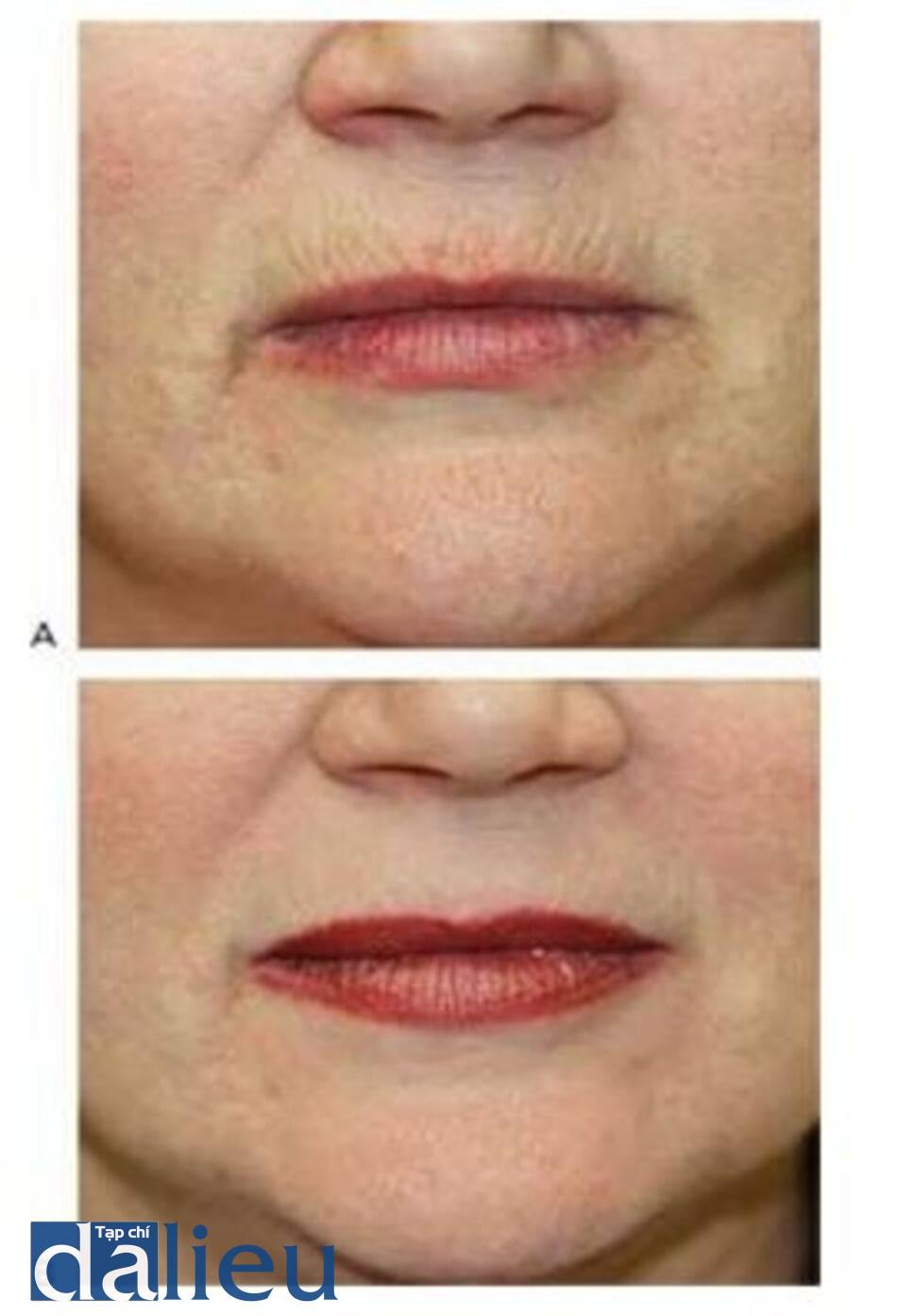 HÌNH 20 Các nếp nhăn tỏa ra ở môi trước (A)và sau khi (B)điều trị kết hợp với laser xâm lấn, tiêm filler, và tiêm độc tố botulinum.