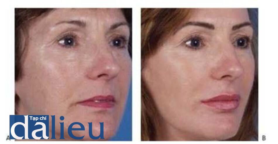 HÌNH 21 Trẻ hóa toàn bộ khuôn mặt trước (A)và sau khi (B)kết hợp điều trị với laser xâm lấn, tiêm filler, và tiêm độc tố botulinum.