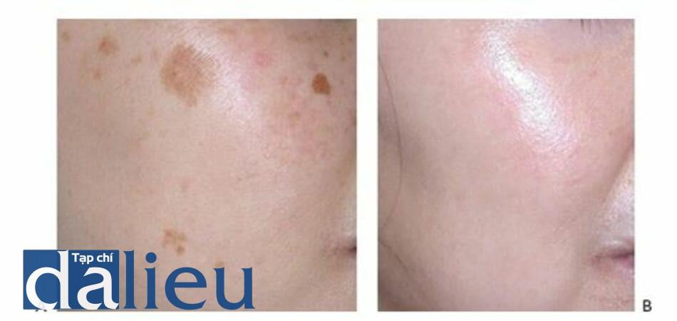 HÌNH 22 Rối loạn sắc tố và kết cấu da thô ráp trước (A)và sau khi (B)kết hợp điêu trị với laser không xâm lấn và xâm lấn